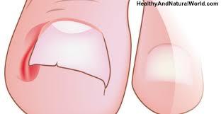home remedies to get rid of ingrown toenails