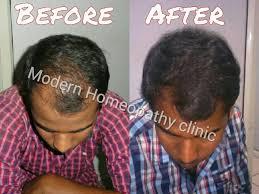 homeopathy treatment for hair loss hair loss doctor hair loss