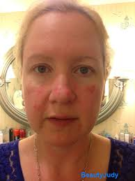 living with rosacea and eczema beautyjudy