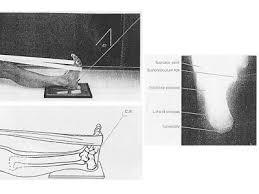 Os Calcaneus Teknik Radiografi Calcaneus Catatan Radiograf