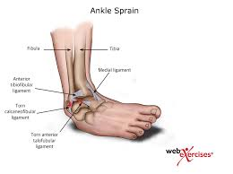 Anterior Fibular Ligament Ankle Sprain Nasm Blog