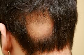 what to ask the doctor honest hair loss help