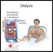 http renalcalculi net dialysis machine html dialysis machine