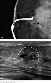 breast disease williams gynecology 3e accessmedicine mcgraw