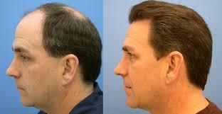 what is a hair transplant u2013 newinhairtransplant