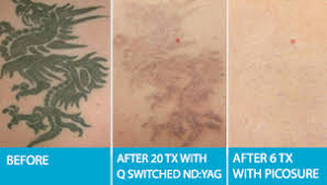 edmonton tattoo removal medical laser tattoo removal urban lasers