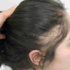 hairstyles for women with alopecia clive hair clinics aus hair loss treatment women alopecia areata