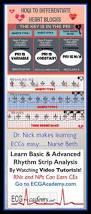 85 best code images on pinterest management medical billing and