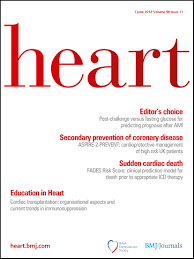 heart transplantation organisational aspects and current trends