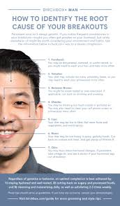 Face Mapping Acne Top 25 Best Causes Of Pimples Ideas On Pinterest Clear Skin