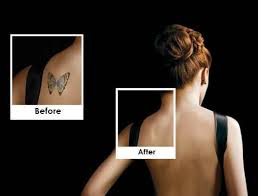 21 best picosure tattoo removal images on pinterest picosure