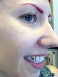diamond stud on tooth tooth gems downtown tattoos nola