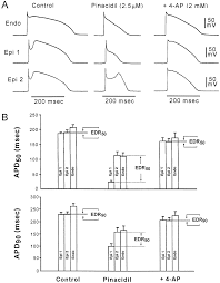cellular basis for the brugada syndrome and other mechanisms of