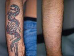 csds laser tattoo removal csds