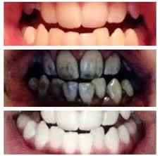 Natural Ways To Whiten Your Teeth Fast Charcoal Whitening Treatment 2oz Charcoal Whitening