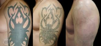 tattoo removal shoulder removal clean canvas more art laser tattoo removal