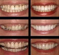 Bridge Dental Cost Estimate by Dental Quito Clinic Implant Dentist In Quito Whatclinic Com