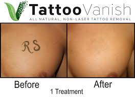 tattoo vanish the first all natural non laser tattoo removal method