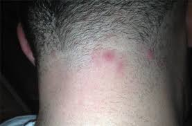 witch hazel for ingrown hair are these ingrowns folliculitis pseudo folliculitis pimples
