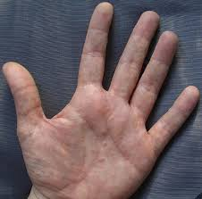 itchy bumps on hands that spread small itchy bumps on hands and feet causes treatments and home