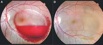 The Blind Spot In The Eye Is Due To The Odd Ways Pregnancy Can Cause Vision Problems