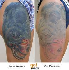 786 best tattoo removal in progress images on pinterest