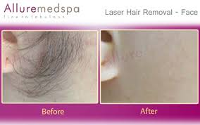 vaginal hair remover laser hair reduction laser hair removal