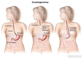 Esophagus And Stomach Anatomy Gastrointestinal Surgery Esophageal Cancer