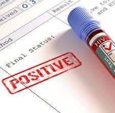 immunschwäche symptome aids diagnose hiv wird in vielen fällen zu spät entdeckt welt