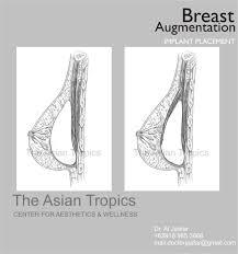 breast augmentation cosmeticsurgeryph