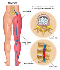Anatomy Of The Knee 5 Stretches To Relieve Sciatic Nerve Pain
