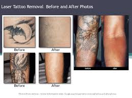 laser tattoo removal price philippines november 2016 tattoo