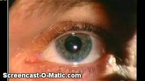 What Is Blind Sight Blindsight Seeing Without Awareness Youtube