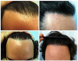 how thick is 1000 hair graft body hair transplant hairline repair using leg hair