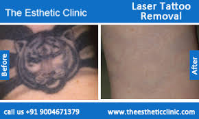 laser tattoo removal treatment permanent tattoo removal mumbai