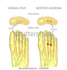 Foot Anatomy Nerves Peripheral Nerves Stock Images Royalty Free Images U0026 Vectors
