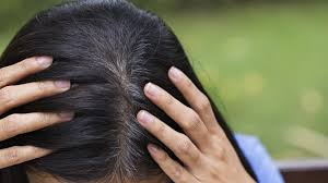 with resistant head lice rampant prescription meds are best