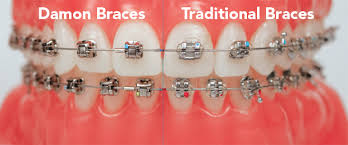 nickel free braces damon braces advantages of damon braces info and pictures