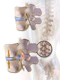Anatomy Of Vertebral Body The Vertebral Column Joints Vertebrae Vertebral Structure