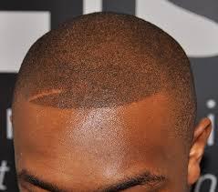 hairline restoration for black men the best hair loss treatment for black men his hair clinic