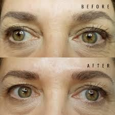 before and after pictures pure radiance advanced skin care
