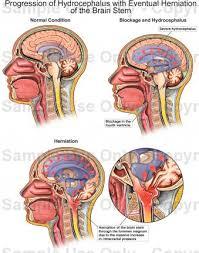 Brain Stem Anatomy Progression Of Hydrocephalus With Eventual Herniation Of The Brain