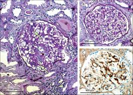 primary glomerulonephritides the lancet