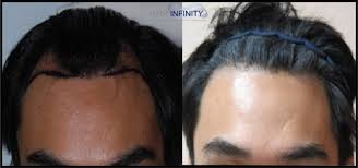 feminization hair hair transplant surgery hair infinity center hair restoration