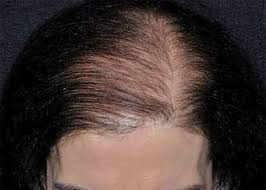 womans hair thinning on sides hair loss female pattern baldness female pattern alopecia