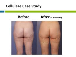 red light therapy cellulite cellulite treatment webinar slides final 1