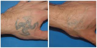 tattoo removal u2013 skin technology