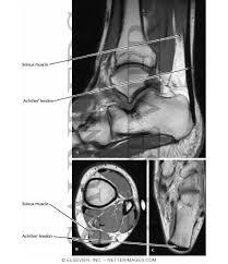 Radiology Anatomy Netter U0027s Concise Radiologic Anatomy