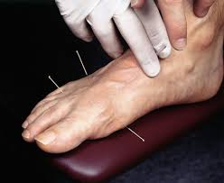 Accupuncture can treat foot pain and inflammation