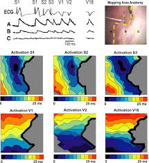 Map Of Cleveland Clinic Optical Mapping Of Late Myocardial Infarction In Rats Heart And